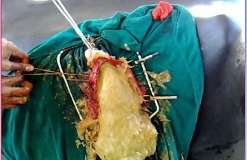 Diagnosis and Management of Diaphragmatic Hernia in Bovines
